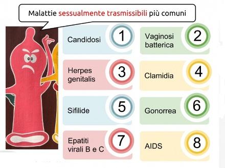 Papilloma virus malattia sessualmente trasmissibile Papilloma virus su ugola, Papilloma virus ugola