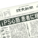 Major Japanese newspaper reports iPS cells already transplanted into human patients at Harvard
