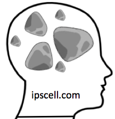 Rocks in Your Head