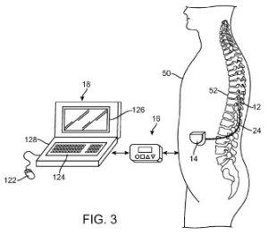 neurostimulation system