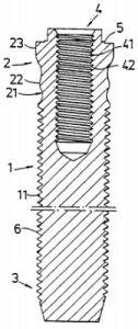 implant fixture