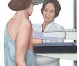 breast cancer screening mammogram