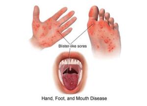 Edu Min: No outbreak of Hand Foot & Mouth disease
