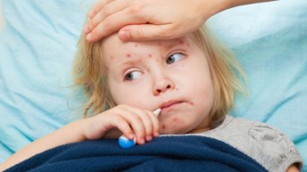Measles – make sure 