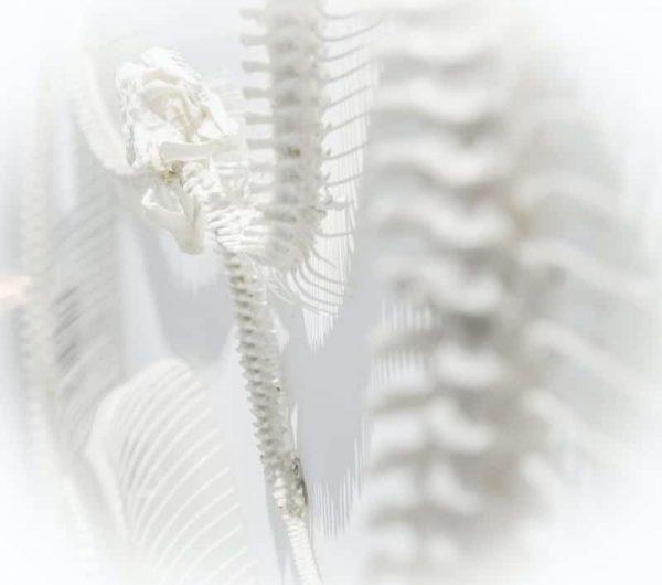 radio des os à la ménopause