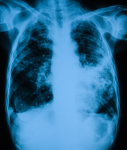 The lungs of a person diagnosed with tuberculosis