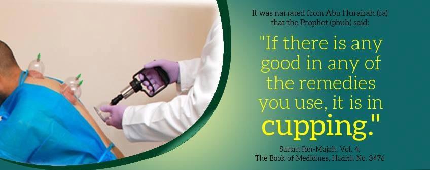 BENEFITS OF CUPPING/HIJAMA IN ISLAM