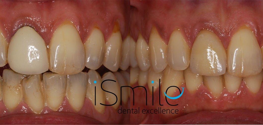 Smile Makeover – Petridis Lambis