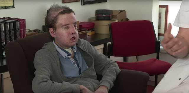 İki Yüz Nakli Geçiren Adam Hayatta Kalan İnsan Olarak Tarihe Geçti