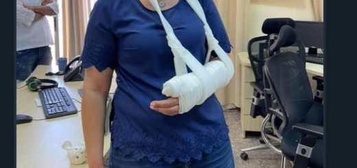 Journalist Givara Albudeiri shows arm broken by Israeli police