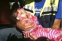 Baby injured in Kiryat Malachi