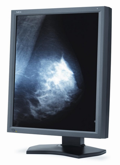 NEC MultiSync MD211G5 Medical-grade Diagnostic Display angle