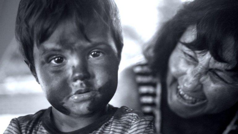 Sponsored VIdeo : มาดูภัยร้ายที่แฝงมากับแสงแดด จากคลิปที่ถ่ายทำด้วย UV Camera 13 - sponsored VDO