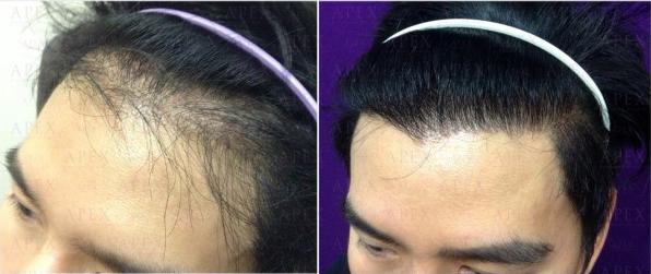 APEX-Robot Hair transplant