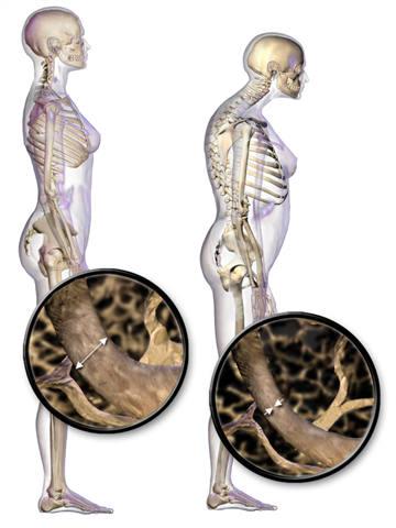 Combate a osteoporose - imagem da doença