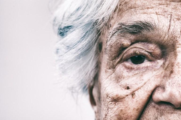 Senior Woman Dementia