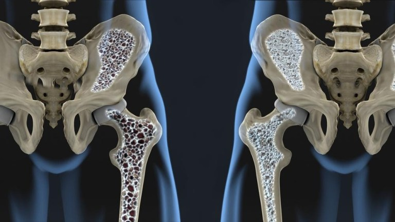 Understanding Osteoporosis | Risks, Treatment & Home Care Services