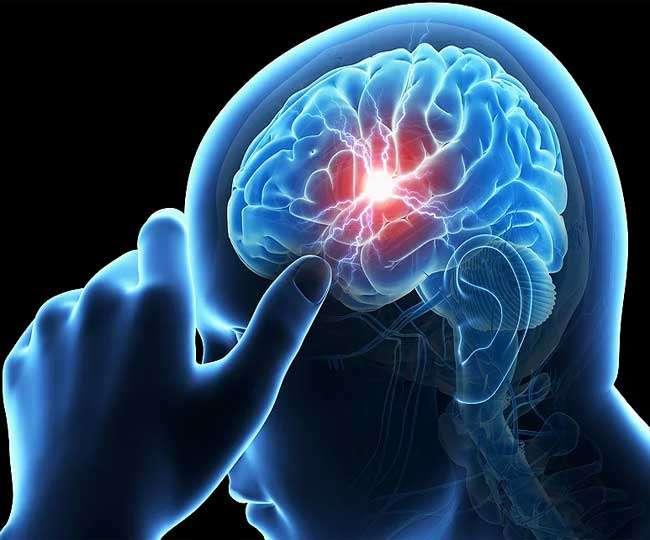 स्ट्रोक के बाद काम करना मस्तिष्क के लिए अच्छा