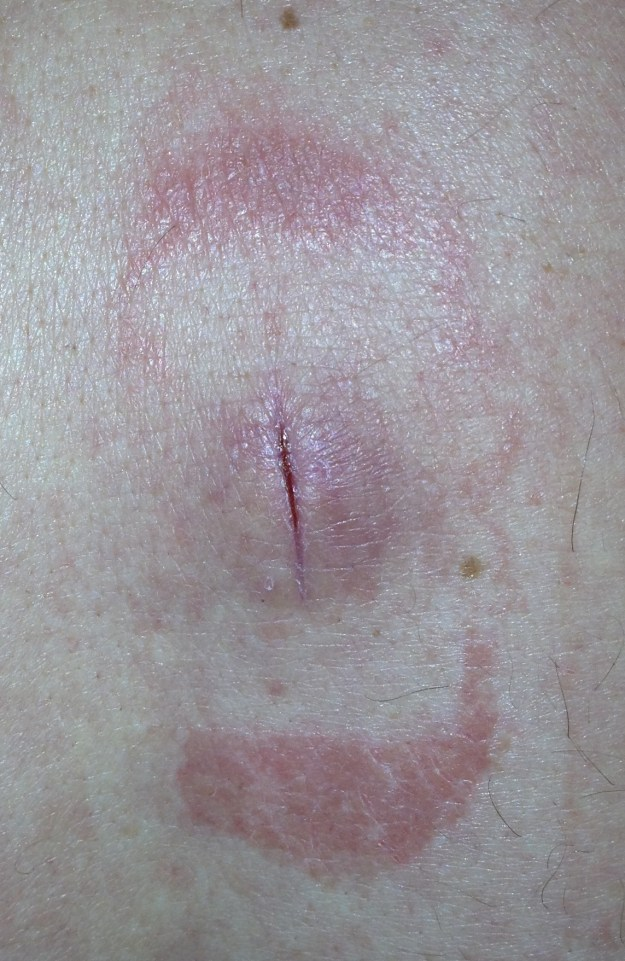 Abscess Incision and Drainage, a Photographic Tutorial