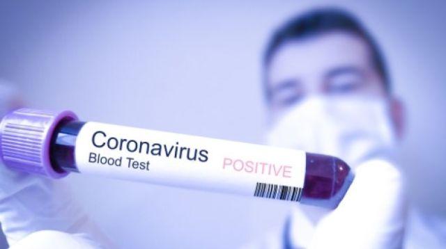 Ilustrasi tes darah untuk mengetahui pasien terinfeksi virus corona (coronavirus) atau tidak. (Shutterstock)