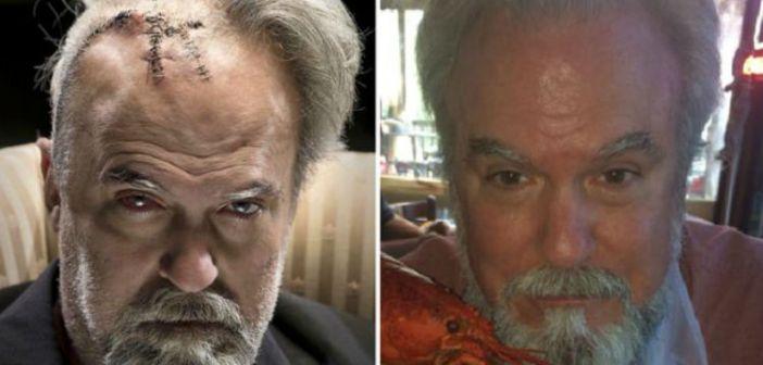 """Após cirurgia, filho """"transforma"""" pai em vilão de James Bond"""