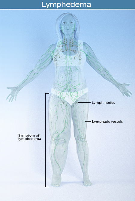 2015-illustration-lymphedema