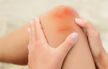woman nursing an injured bruised grazed knee with surface petechia on the skin and tissue discoloration in her hands in a healthcare and medical concept, close up of the joint and hands