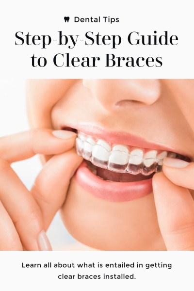 Clear Braces Guide