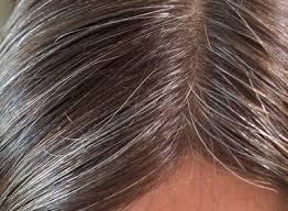 الشعر الابيض