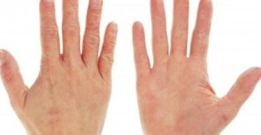 كيفية علاج جفاف الجلد