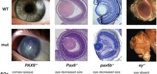 The effects of Pax6 on eye development