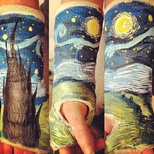 peindre un bras cassé, la nuit étoilée