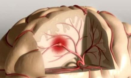 Des mesures préventives qui servent à éviter un accident vasculaire cérébral
