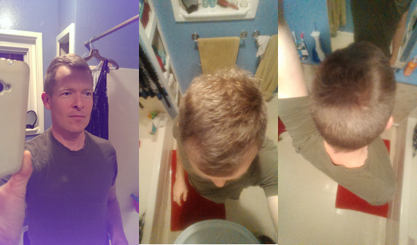 Hair regrowth progress as of August 2015.