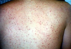 Common skin rashes - Drug eruptions