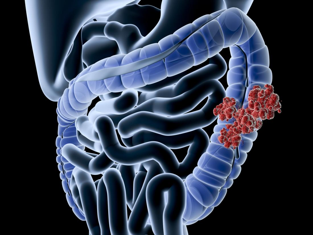 Colon Cancer: Causes, Symptoms, and Prevention