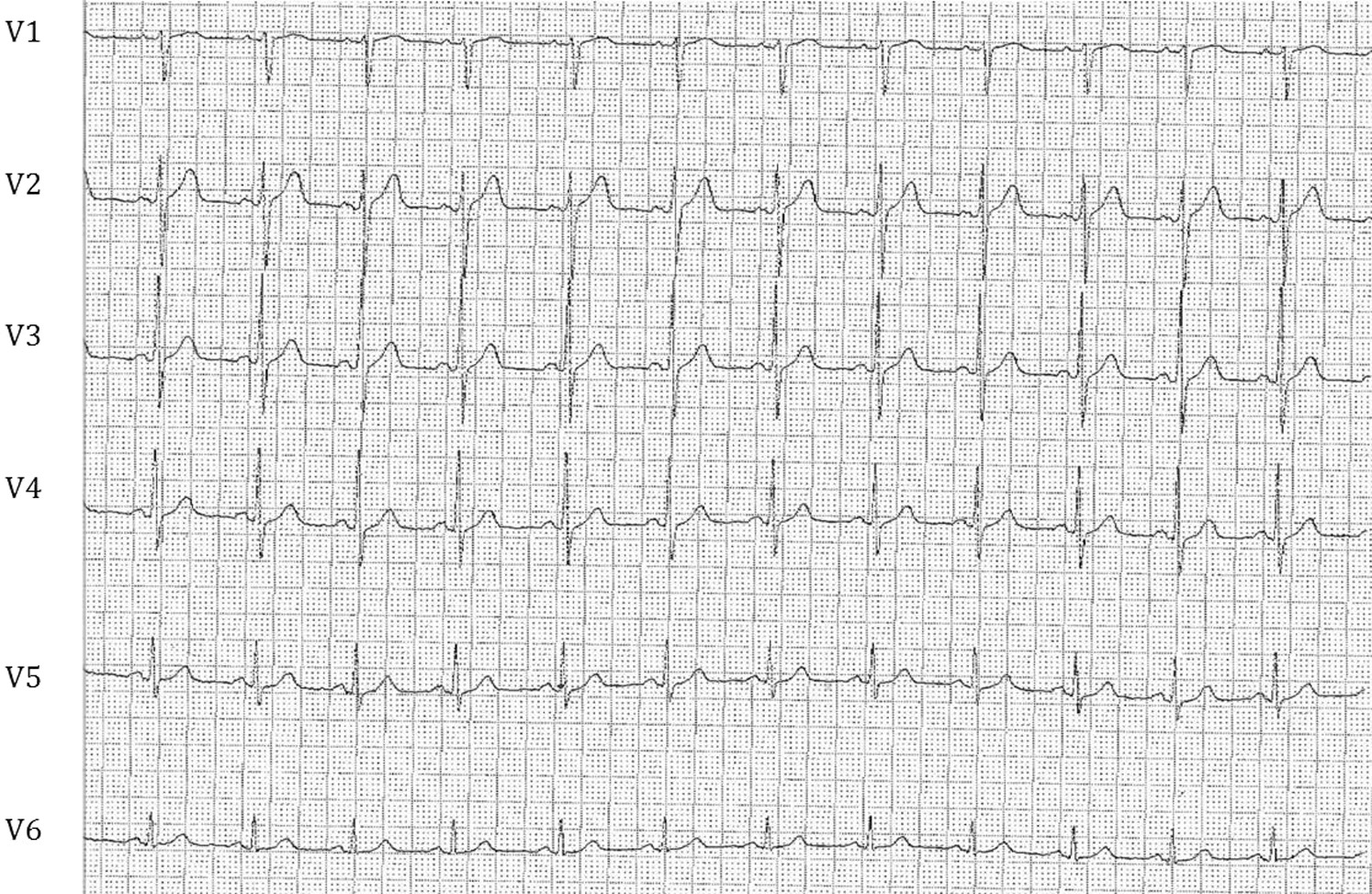 Brugada Pattern Caused By A Flecainide Overdose