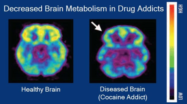 Brain_metabolism_and_drug_addiction