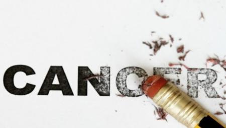 Tanpa Operasi dan Kemoterapi Kanker Bisa Sembuh