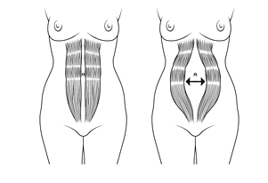 diastasis recti exercises