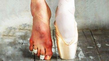 Czy taka jest cena za oklaski? Tak wyglądają stopy tancerzy baletowych! Poznaj prawdę na temat ich pracy!