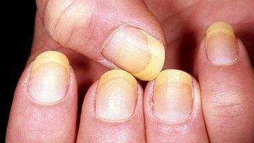 Zobacz, jak na podstawie płytki paznokciowej zdiagnozować stan zdrowia. Nie chcesz wiedzieć, co sygnalizuje żółte zabarwienie!