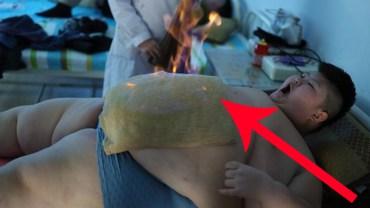 Położyła na brzuchu chłopca mokry ręcznik, a potem go podpaliła. To terapia tylko dla naprawdę odważnych!
