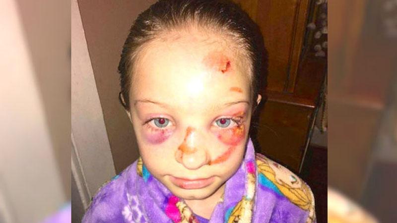 Kelly Turpin była w szoku, gdy zobaczyła twarz swojej córki. Dyrekcja szkoły dziecka próbowała przekonać matkę, że...dziewczynka się przewróciła