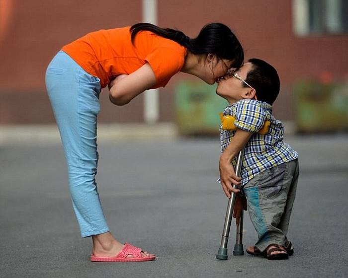 She survived a serious accident, he has a spinal deformity, but together they can touch the sky because their love is true, deep and sincere 3