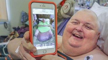 Lekarze przez 12 lat wmawiali mu, że wzrost wagi to wynik otyłości. W końcu jeden z chirurgów odkrył prawdę o ciele Rogera