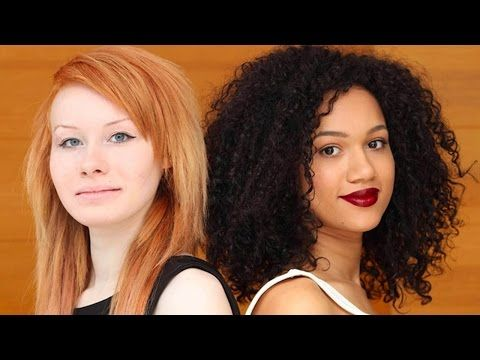 These twins were born with different skin colors. Here's how they look 20 years later! 6