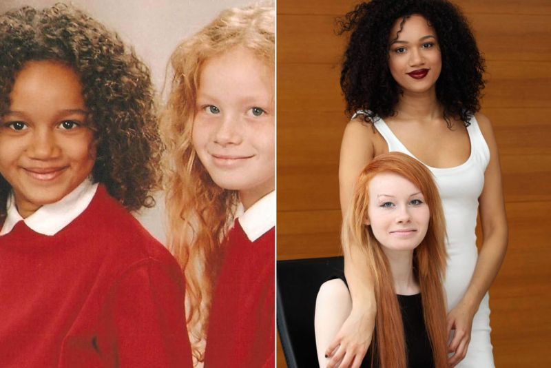These twins were born with different skin colors. Here's how they look 20 years later! 5