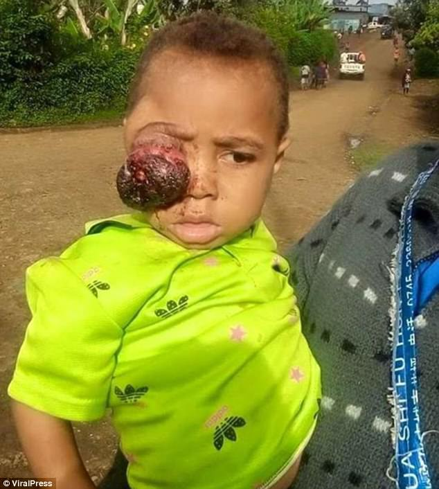 Zacofani rodzice pozwolili, by olbrzymi guz urósł i pochłonął oko ich synka. Głęboko wierzyli, że 3-latka uleczy CZARNA MAGIA!