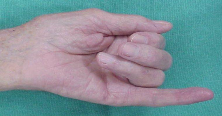 Mały palec powie ci sporo ciekawych rzeczy. Wystarczy, że się mu przyjrzysz i porównasz długość paliczków!